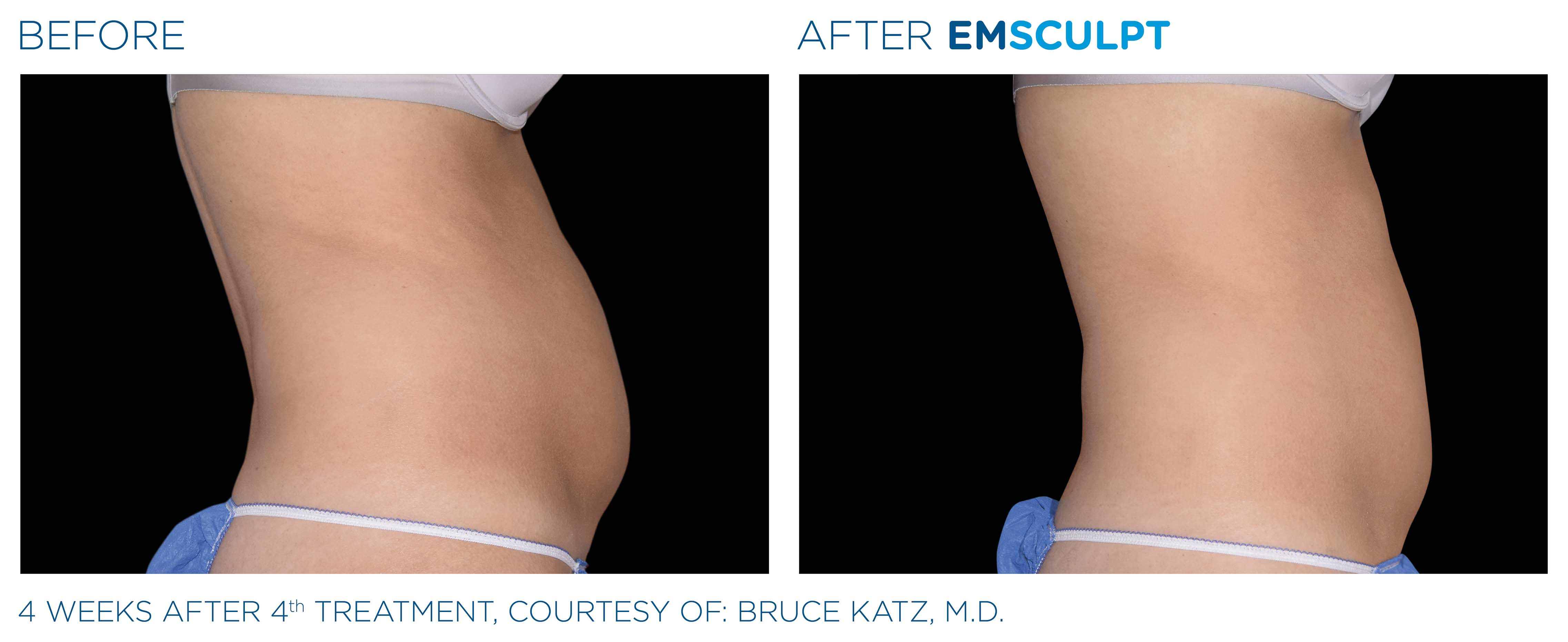 EmSculpt Canada | Muscle Building, Fat Burning Technology